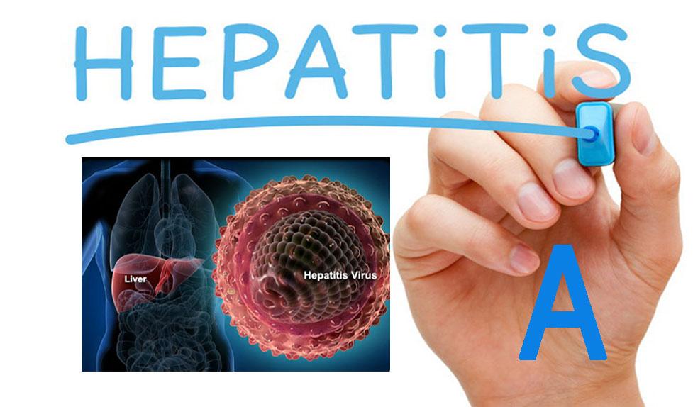 Apa Obat Herbal Hepatitis A Terbaik?