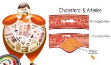 Batasi Makanan ini Agar Terhindar Dari Kolesterol Jahat