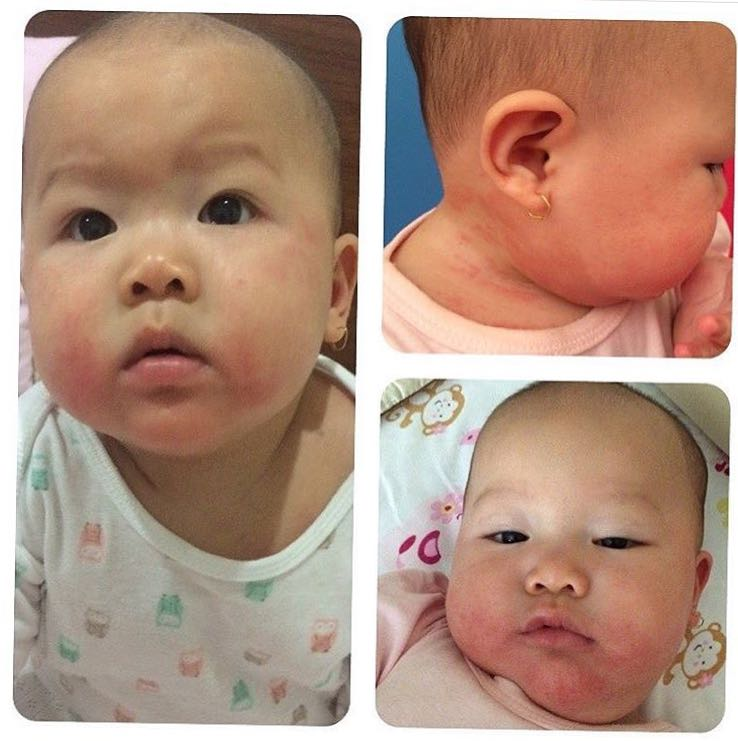 Food allergy in Baby, eczema is not that scary image