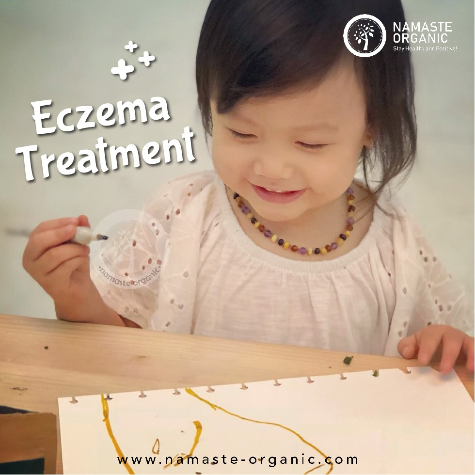 Emma's Eczema Story part 2 (Treatment) image